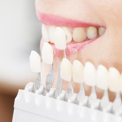 сколько стоит отбеливание зубов цена